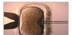 Umělé oplodnění a následný porod