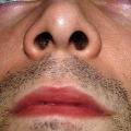 Rady, jak se zbavit suché sliznice nosu