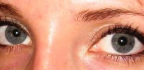 Oční pigmentace