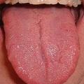 Bolest jazyka