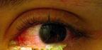 U Chameleona Infekce v oku u bety b...