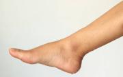 Pocení nohou