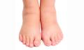Domácí recepty naoteklé nohy