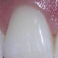 Přírodní antibiotika nazánět zubu