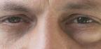 Babské rady naoteklé oči