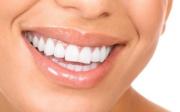Domácí triky na bílé zuby