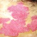 Léčba lupénky ve vlasech