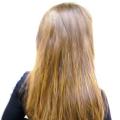Vypadávání vlasů u žen