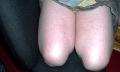 Bílé skvrny na stehnech