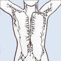Lymfatický systém