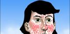 Léčba podkožní akné