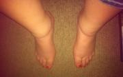 Oteklé nohy kolem kotníků