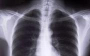 Rakovina plic ametastáze dokosti