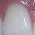 Zánět zubu podkorunkou