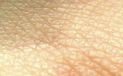Příčiny svědění kůže